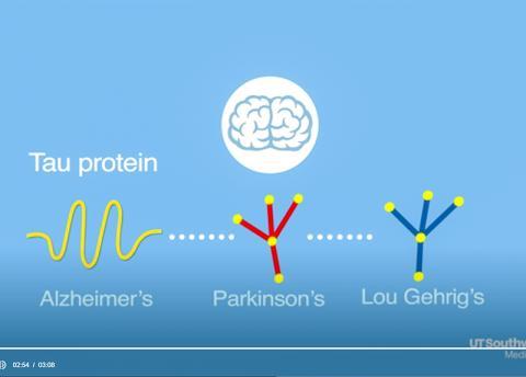타우 단백질 전문가인 다이어먼드 박사는 이 단백질이 알츠하이머병을 비롯해 여러 신경퇴행성 질환의 원인이 되는 것으로 보고 있다.  동영상 캡처. CREDIT: UT Southwestern