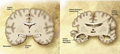 정상적인 뇌(왼쪽)와 알츠하이머환자 뇌의 비교. ⓒ Wikimedia Commons