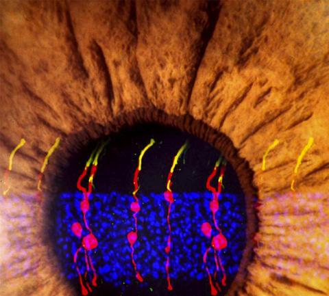 뮐러 신경교 세포 유래 막대 광수용체(간상체) 이미지를 눈 모양과 합성한 그림. 이 새로 형성된 광수용체는 실제의 광수용체와 같고, 망막과 뇌에 이르는 시각 경로 회로에 통합됐다.  CREDIT: Bo Chen, Ph.D.