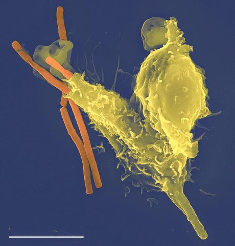 인체 면역세포의 하나인 호중구(노란색)가 탄저균 박테리아(오렌지색)을 삼키고 있는 주사전자현미경 사진.  Credit: Wikimedia Commons/ Volker Brinkmann/