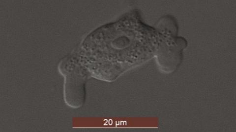 제주도에서 발견된 아메바류 원생동물 ⓒ 국립생물자원관