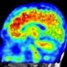 알츠하이머병 조기에 발견한다