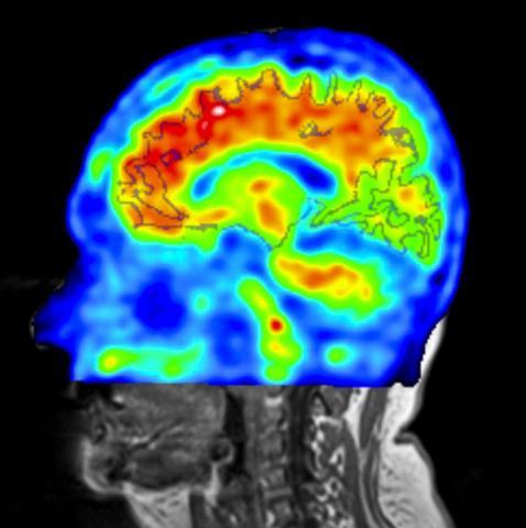 뇌 스캔은 아밀로이드-베타 단백질 축적량을 조사하는 한 가지 방법으로, 경도 인지장애의 징후를 알 수 있다.  CREDIT: The University of Miami Miller School of Medicine