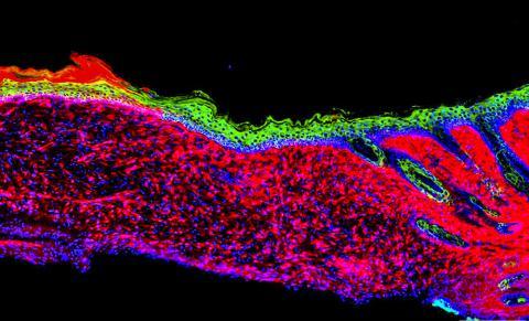 생체 내 AAV-기반 기술로 포유류에서의 성공적인 피부 재생에 대한 최초의 원리 증명을 나타내는 사진. 실험실 쥐 모델에 생긴 큰 궤양에서 중간엽 세포(빨간색)를 다른 각질형성세포(녹색)로 전환시켜 피부 상피조직이 생성됐다.  CREDIT: Salk Institute