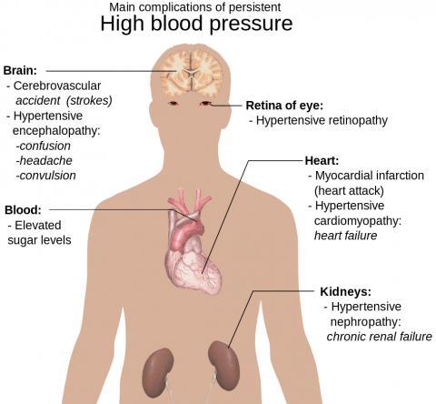 만성 고혈압으로 인해 나타나는 혈관 및 뇌와 심장, 망막, 신장 등 인체 각 부위 질환들. Credit : Wikimedia Commons / Mikael Häggström