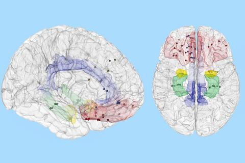 연구팀에 따르면 기분은 뇌의 일부 영역이 아니라 여러 영역에 걸쳐 나타나며, 이는 컴퓨터로 해독해 낼 수 있다.  Credit: USC News / Image/Sani et. al., Nature Biotechnology, modified from original format