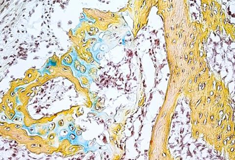 인체 골격 줄기세포에서 발생시킨 작은 뼈 구조물에 연골(파란색)과 골수(갈색) 및 뼈(노란색)가 포함돼 있다.