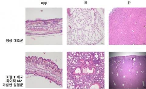 조절T세포 특이적 Id2 과발현 시 자가 면역질환이 심화하는 모습 ⓒ IBS 제공