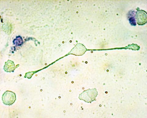 쥐의 면역계 마크로파지(가운데)가 병원균으로 생각되는 두 입자를 사로잡기 위해 두 '팔'을 뻗치고 있는 모습.  Credit: Wikimedia Commons / Obli