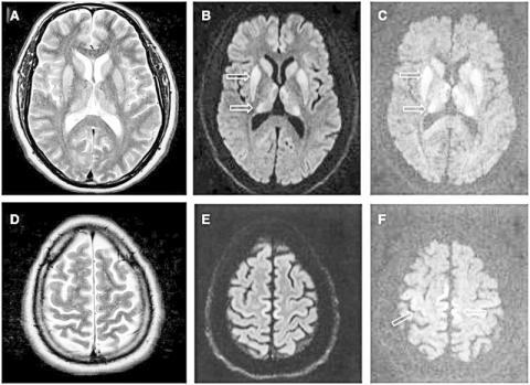 성장호르몬 때문에 CJD에 걸린 46세된 환자의 뇌 MRI 사진. CJD를 일으킬 수 있는 결함 있는 단백질은 오염된 인체 뇌 관련 제품과 각막 이식편, 뇌경막 이식편, 전극 임플란트와 인간성장호르몬 등에 의해 전파될 수 있다.  Credit:Wikimedia  Commons/https://www.ncbi.nlm.nih.gov/pmc/articles/PMC4620512/figure/awv235-F2/