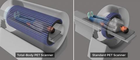 기존 CT(우)와 익스플로러 시스템의 스캔 범위 비교 ⓒ UC Davis