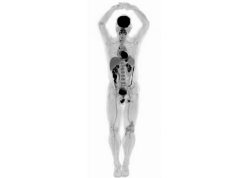 익스플로러 시스템이 스캔한 신체 전신 이미징 ⓒ UC Davis