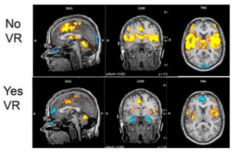 MRI 뇌 스캔 사진. 연구진은 SnowWorld를 통해 게임을 한 환자의 통증 관련 뇌 활동이 현저히 감소했다고 밝혔다. ⓒ University of Washington