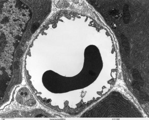 과학자들이 첨단 장비를 적용해 그동안 5~10 미크론 직경의 모세혈관 내 혈류 활동을 밝혀내기 시작했다. 불치병  ⓒWikipedia