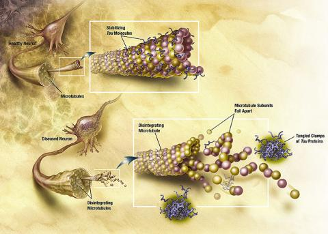 알츠하이머병에 의해 신경미세소관이 분해되는 그림. 미세소관을 지지하고 있는 타우 단백질이 서로 무리를 지어 엉켜서 퇴행을 일으킴으로써 알으하이머병 같은 신경퇴행성 질환이 발병한다.  Credit: Wikimedia Commons / NIA/NIH