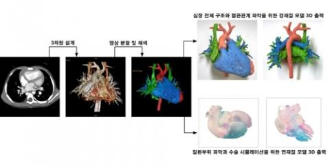 심장기형질환 검사영상 3D 모델 제작 과정