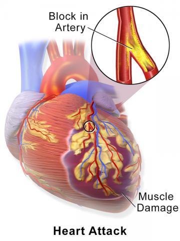 흔히 심장마비로 불리는 심근경색은 죽상동맥 경화 플라크가 관상동맥의 혈관 안쪽 벽에 천천히 쌓이다 갑자기 터져나오며 치명적인 혈전 형성을 일으켜 혈관이 완전히 폐쇄되고 혈류가 막히면서 발생한다. CREDIT: Wikimedia Commons / Blausen Medical Communications, Inc.