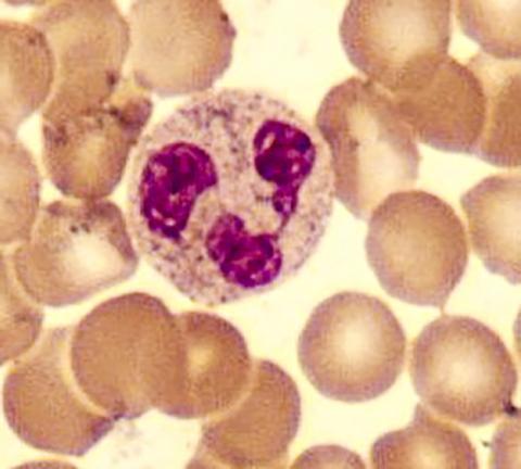 인체의 주요 면역체계를 구성하는 호중구 과립구의 모습. 이 면역세포가 활성화돼 단백잘분해 효소와 결합함으로써 오히려 인체에 해를 입히는 현상이 일어날 수 있다.  Credit: Wikimedia Commons / Tommaso Leonardi