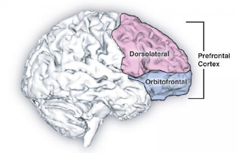 유산소운동 24주 뒤의 뇌 영상에서는 왼쪽 꼬리 중간 전두엽 피질에서 피질 두께가 현저하게 증가한 것으로 나타났다. 그림은 배측면 전두엽과 안와 전두엽이 있는 앞 전두엽 피질 모습.  Credit: Wikipedia Commons / Natalie M. Zahr, Ph.D., and Edith V. Sullivan, Ph.D.