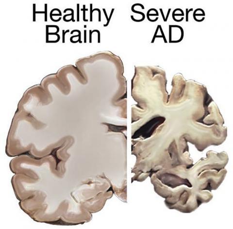 연구팀은 치매가 시작되거나 치매가 빠르게 진행되는 것에 대해 환자의 교육 정도가 아무런 역할을 하지 못 한다고 밝혔다. 사진은 건강한 뇌와 알츠하이머 치매 환자의 뇌 비교.  Credit: Wikimedia Commons / NIH