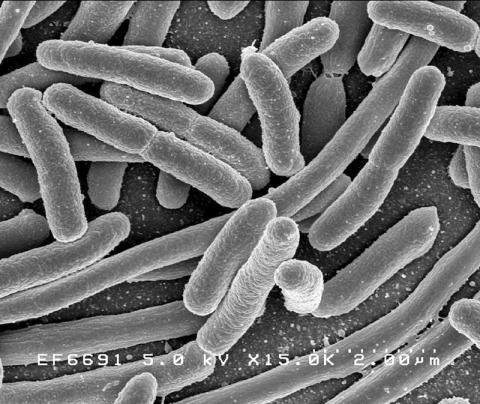 인체 장에서 많이 발견되는 박테리아종의 하나인 대장균(E.coli) 현미경 사진.  Credit: Rocky Mountain Laboratories, NIAID, NIH