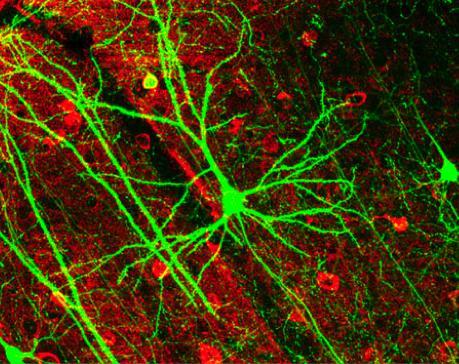 남녀 간의 뇌세포 대사작용을 비교분석한 결과 여성의 뇌세포 대사작용이 남성보다 4년 더 활성화돼 ⓒWikipedia