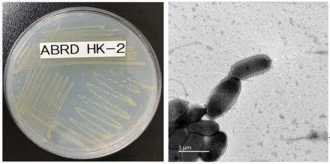 프탈레이트 분해활성이 우수한 미생물 노보스핑고비움 플루비의 현미경 사진