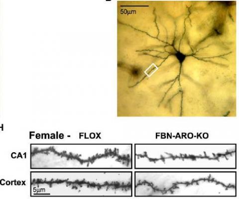 생쥐 뉴런(위)의 수상돌기를 확대해보면 정상 생쥐(아래 왼쪽)에 비해 돌연변이 생쥐(아래 오른쪽)에서 수상돌기 가시(오돌토돌 튀어나온 부분)의 밀도가 꽤 떨어져 있음을 알 수 있다. ⓒ 신경과학저널