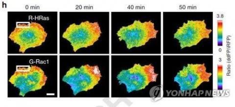 유방암 전이 암세포 ⓒ 기초과학연구원/연합뉴스