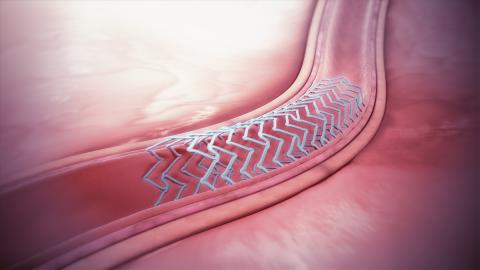 스텐트는 혈관 내에 삽입하여 혈류 흐름을 원활하게 만드는 의료기기이다.  Wikimedia Commons