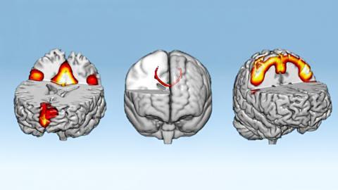 뉴로피드백 실험 1시간 뒤 연결성이 증가한 신경 네트워크. 왼쪽부터 기본모드 네트워크, 뇌량계 그리고 감각운동 네트워크 모습. ⓒ D'Or Institute for Research and Education (IDOR)