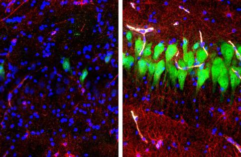 왼쪽은 죽은 지 10시간 후까지 아무런 조치를 취하지 않은 돼지의 뇌 세포 상태이며, 오른쪽은 브레인엑스를 연결해 생명의 징후가 나타난 상태다. ⓒ Nature, Yale School of Medicine