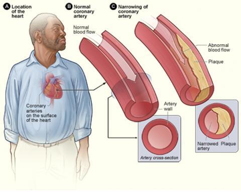 동맥경화증은 몸 속에 과잉 공급된 지방이 혈관벽에 축적되면서 혈액의 흐름을 방해하는 질병이다. Wikimedia Commons