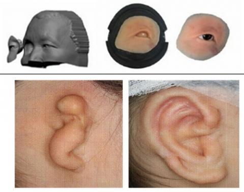 3D 프린팅으로 제작된 의안(상)과 소이병 환자의 대체용 귀(하) Ⓒ 연세의료원