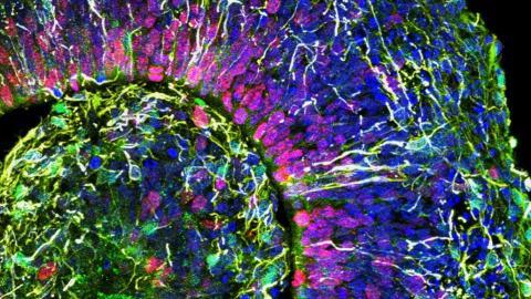사진은 뇌 오가노이드를 구성하고 있는 뇌세포들을 3D 컬러 영상으로 촬영한 영상. 과학자들이 이 뇌 오가노이드를 통해 베일에 가려져 있던 뇌세포 성장의 비밀을 밝혀내고 있다. ⓒMuotri Lab/UCTV
