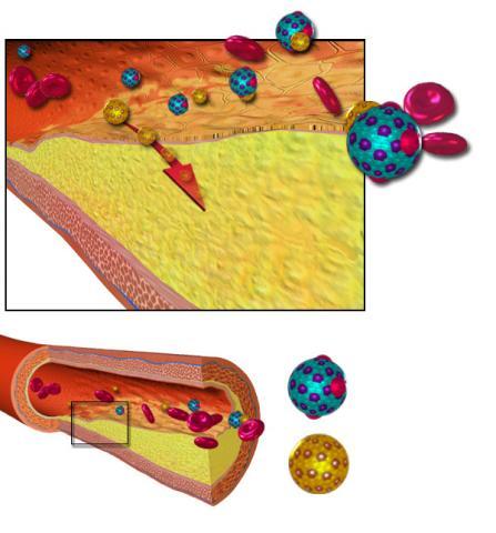 핏속의 지단백질로 인해 동맥 혈관 안에 플라크가 침착되는 죽상동맥경화증 그림. Credit: Wikimedia / BruceBlaus