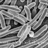 장내 미생물군 리모델링해 질병 치료
