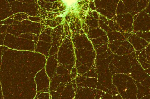 실험에서 자극을 주자 기억 생성에 관여하는 CPEB3(녹색) 단백질이 뉴런의 신경가지에 집중적으로 나타났다. Credit: Lenzie Ford and Luana Fioriti/Kandel lab/Columbia's Zuckerman Institute
