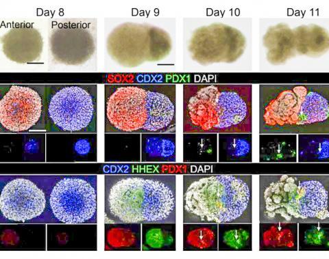 장 오가노이드가 모양을 갖추기 시작하는 주요 순간을 촬영한 초점 공유 현미경 이미지. 혼합된 세포 형태의 두 '회전 타원체'로부터 간과 췌장 및 담도관이 연결되는 초기 형성 단계를 나타내는 융합된 원시-장(proto-gut)으로의 전환 과정을 보여준다.  CREDIT: Cincinnati Children's