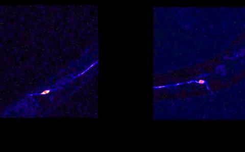 하버드의대 과학자들은 새로운 연구를 통해 과도한 신경활동(영상에서 빛의 깜박임)이 수명을 단축시킨다고 밝혔다. 신경활동은 수명이 긴 선충(오른쪽)보다 정상적인 선충(오렌지 섬광, 왼쪽)에서 더 활발한 것으로 나타난다. 동영상 캡처  CREDIT: Yankner lab, Harvard Medical School /Nature
