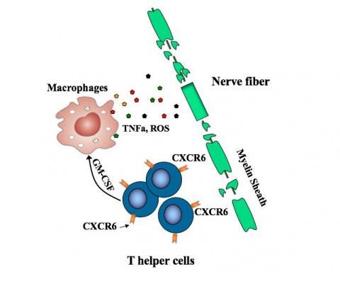 악당세포(푸른색 원)에서 나온 GM-CSF가 대식세포를 자극하면 수초를 갉아 먹으면서 신경세포가 손상된다.  ⓒ 보스톤 아동병원