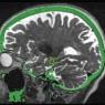 뇌의 해마 안에 있는 3개의 표적 부위를 MRI와 융합 CT 이미지로 나타낸 사진. 해마는 기억에 중요한 역할을 하는 뇌 조직으로 알츠하이머병 환자에게 영향을 미친다.
