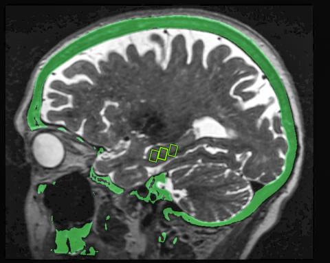 뇌의 해마 안에 있는 3개의 표적 부위를 MRI와 융합 CT 이미지로 나타낸 사진. 해마는 기억에 중요한 역할을 하는 뇌 조직으로 알츠하이머병 환자에게 영향을 미친다.  CREDIT: Study author and RSNA