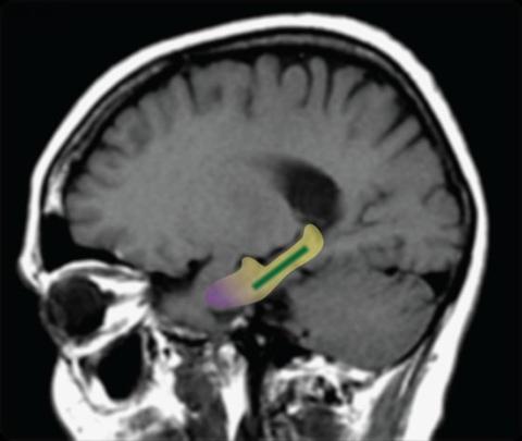 노란색 영역은 대뇌 측두엽의 해마, 녹색은 치상회, 보라색은 내후각 피질이다. © Scott A. Small